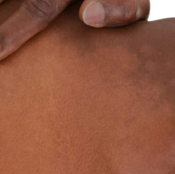 illustration-medicale-dermatologie-callimedia-formation